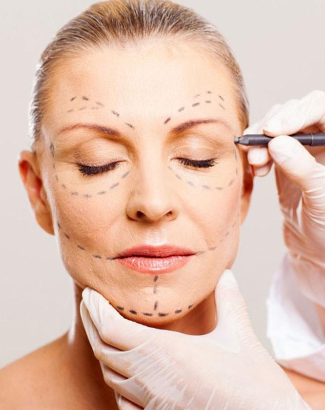consulta-lifting-facial