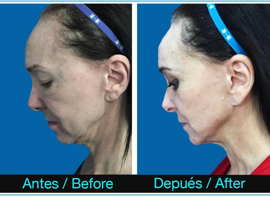 35_blefaroplastia + lifting cuello