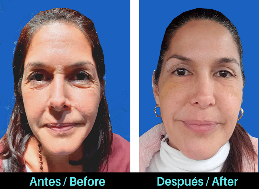 Antes-despues-blefaroplastia-Colombo-